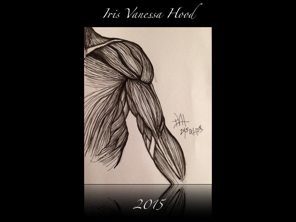 Arm_Iris_2015_IVH_blog.001